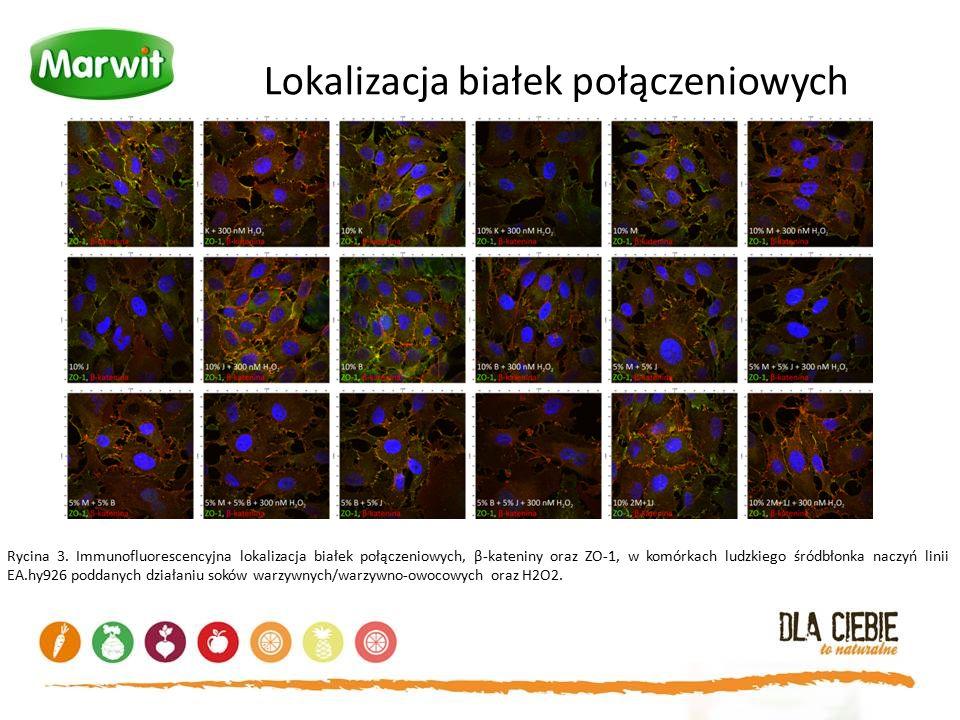 Lokalizacja białek połączeniowych