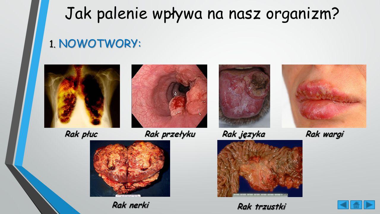 Jak palenie wpływa na nasz organizm
