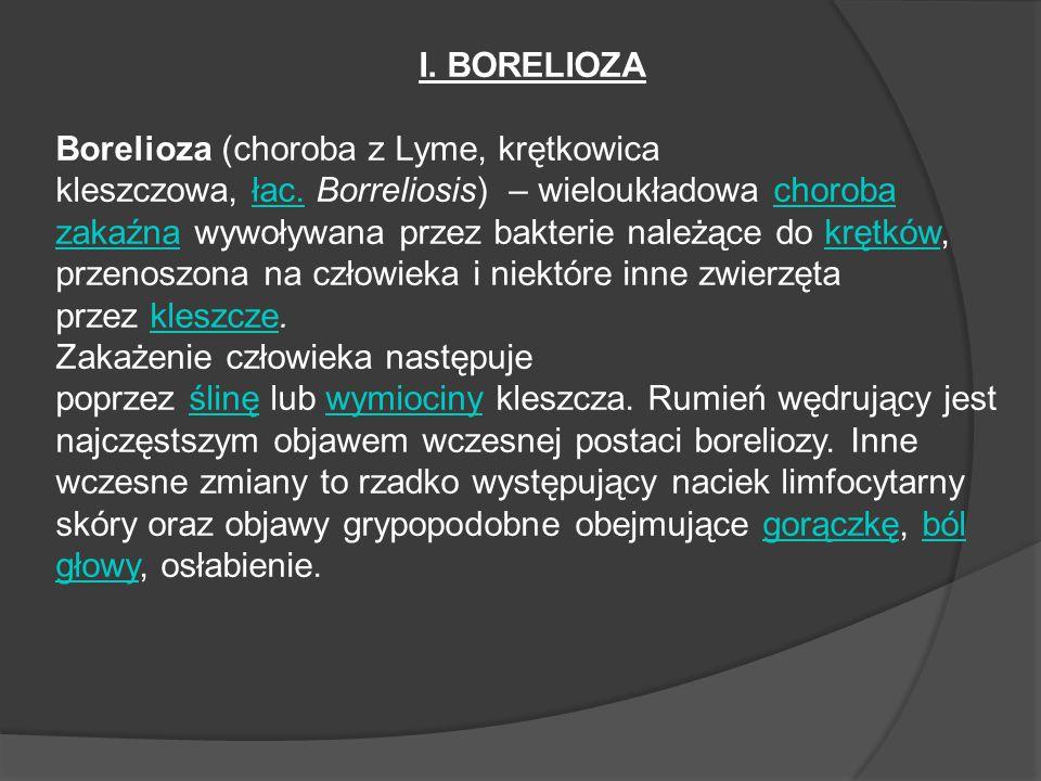 I. BORELIOZA