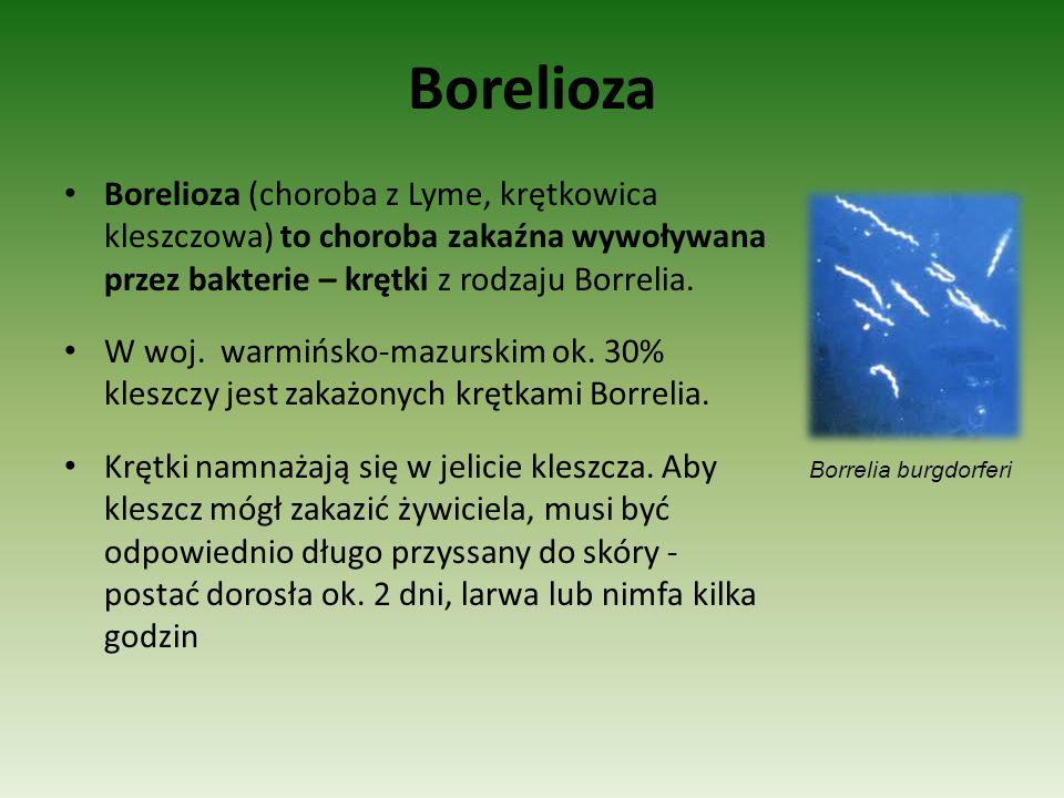 Borelioza Borelioza (choroba z Lyme, krętkowica kleszczowa) to choroba zakaźna wywoływana przez bakterie – krętki z rodzaju Borrelia.
