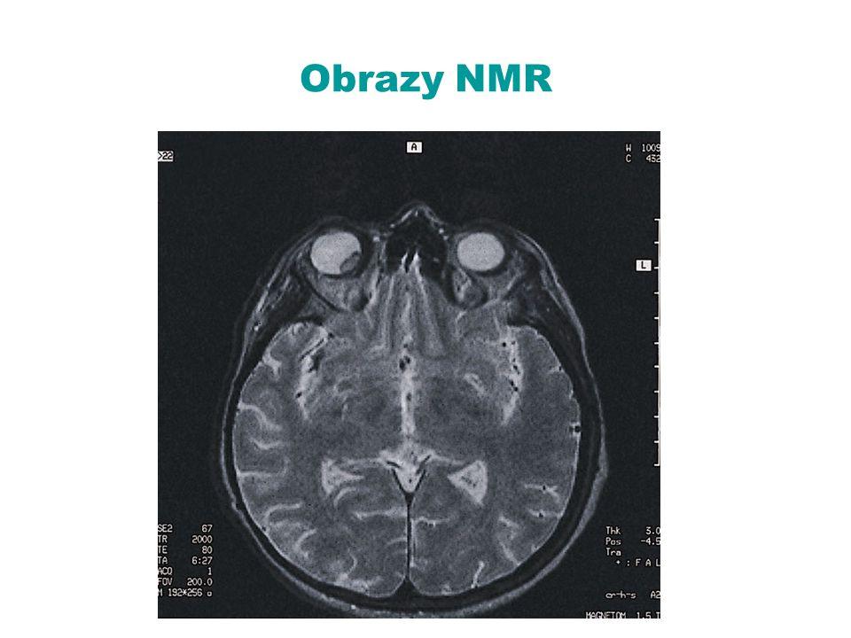 Obrazy NMR