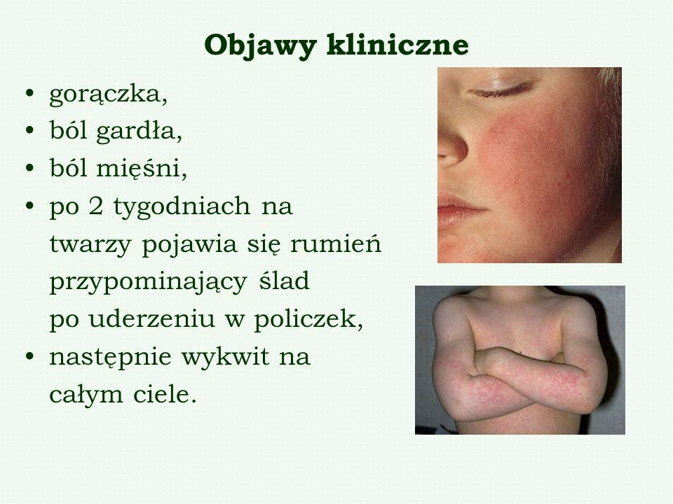 Objawy kliniczne gorączka, ból gardła, ból mięśni, po 2 tygodniach na
