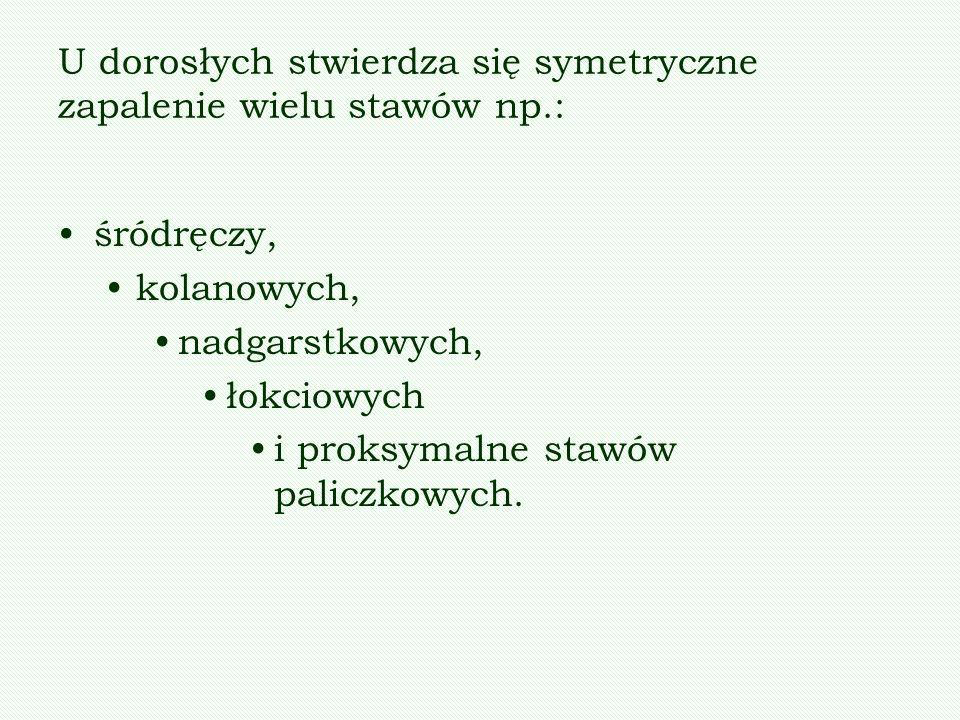U dorosłych stwierdza się symetryczne zapalenie wielu stawów np.: