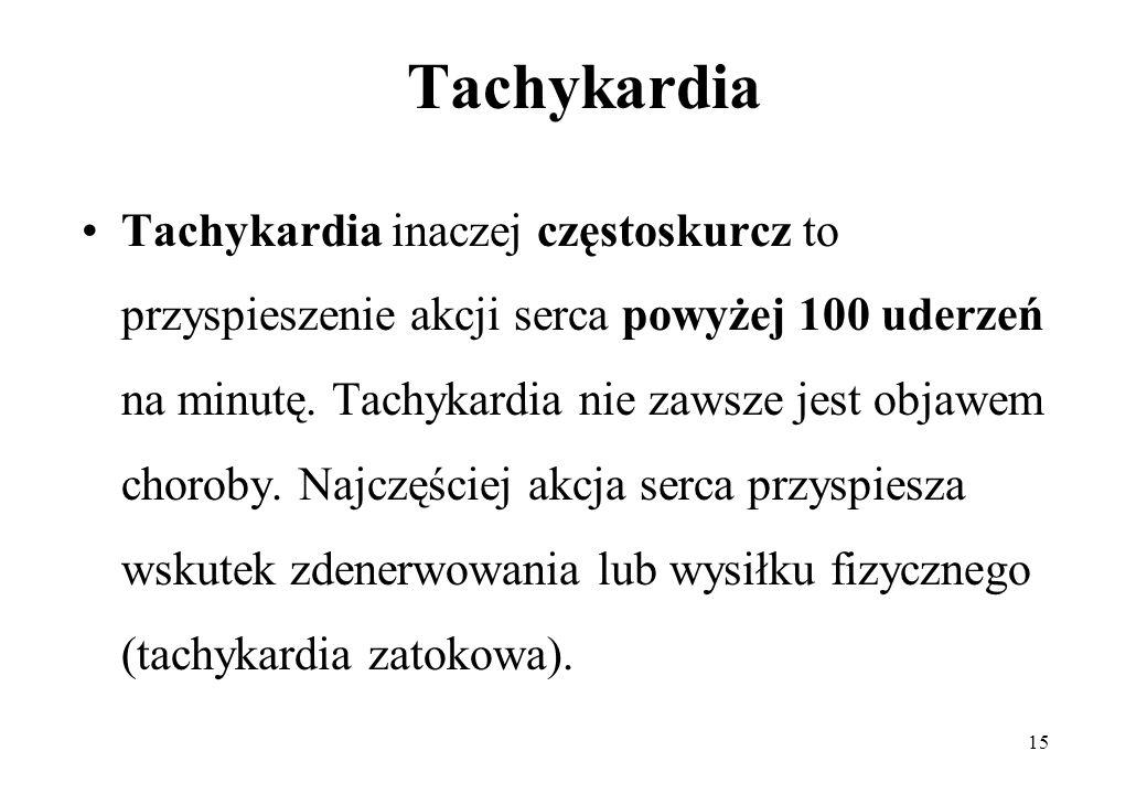 Tachykardia