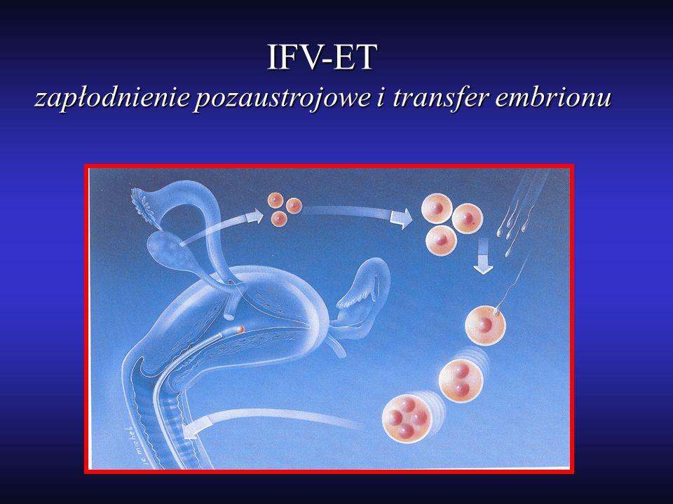 zapłodnienie pozaustrojowe i transfer embrionu