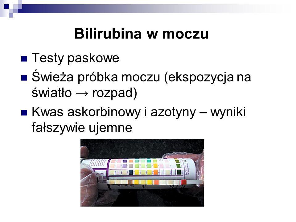 Bilirubina w moczu Testy paskowe