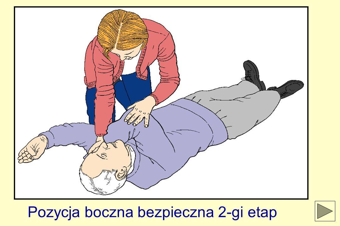 Pozycja boczna bezpieczna 2-gi etap