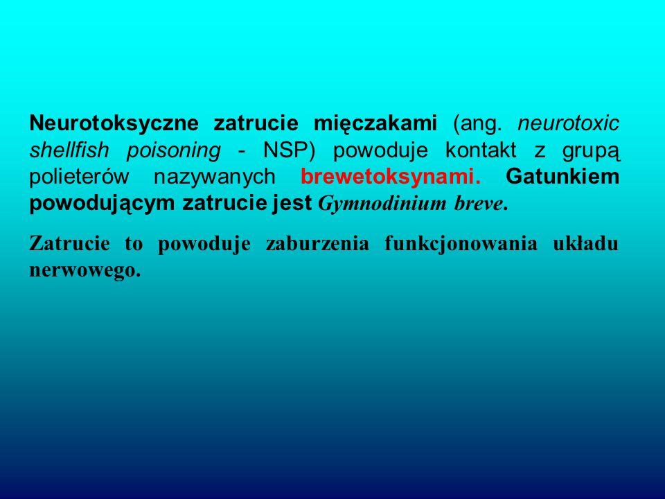 Neurotoksyczne zatrucie mięczakami (ang