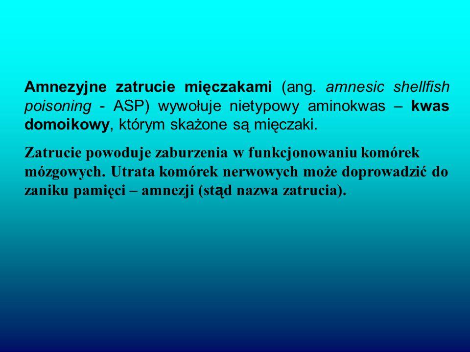Amnezyjne zatrucie mięczakami (ang