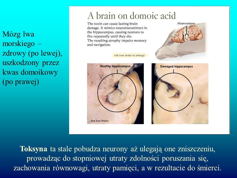 Mózg lwa morskiego – zdrowy (po lewej), uszkodzony przez kwas domoikowy (po prawej)