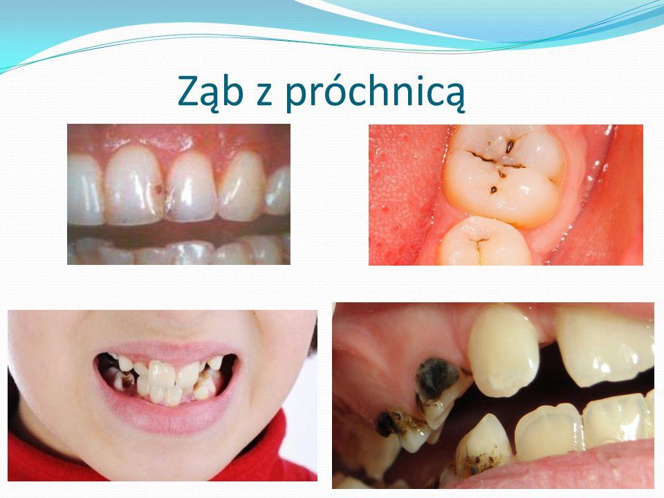 Ząb z próchnicą
