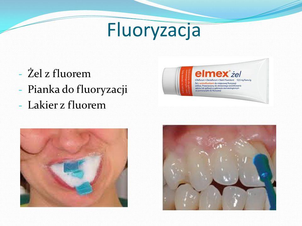Fluoryzacja Żel z fluorem Pianka do fluoryzacji Lakier z fluorem