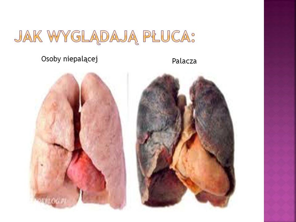 Jak wyglądają płuca: Osoby niepalącej Palacza