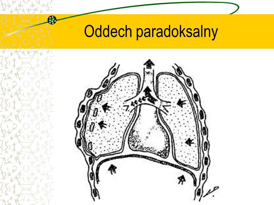 Oddech paradoksalny