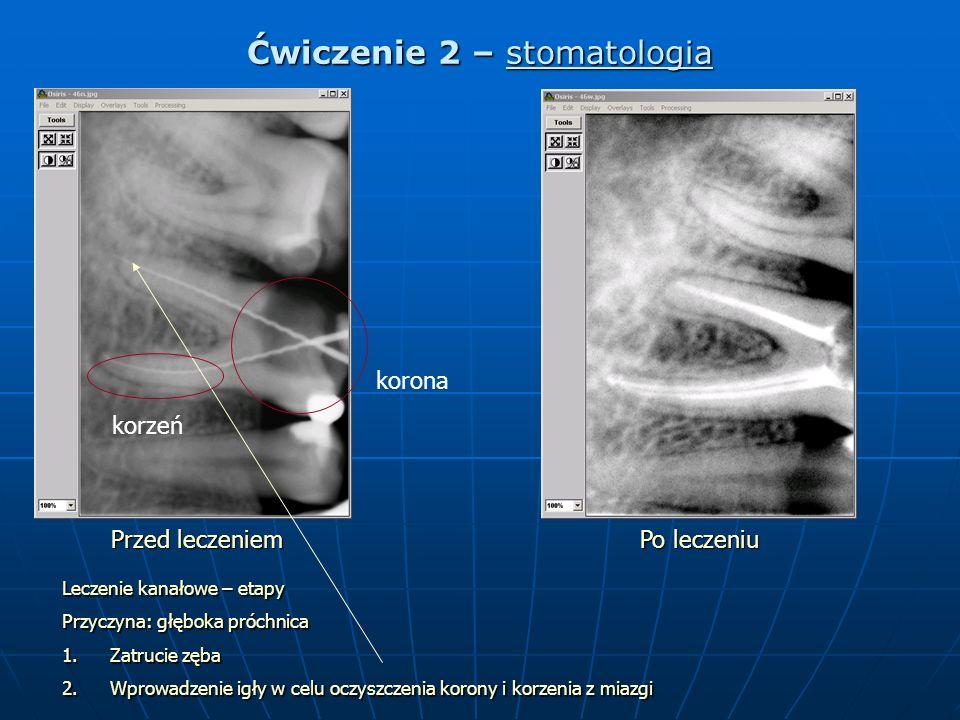 Ćwiczenie 2 – stomatologia