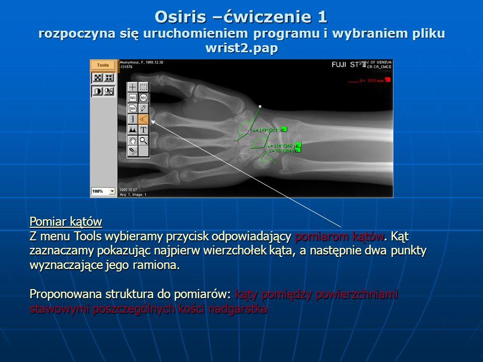 Osiris –ćwiczenie 1 rozpoczyna się uruchomieniem programu i wybraniem pliku wrist2.pap