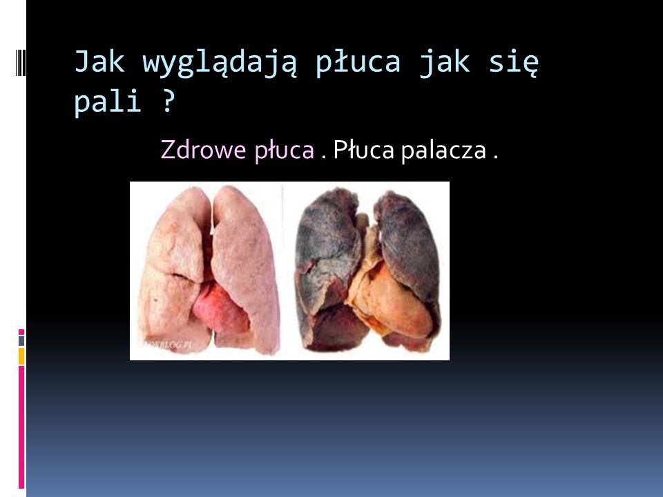 Jak wyglądają płuca jak się pali