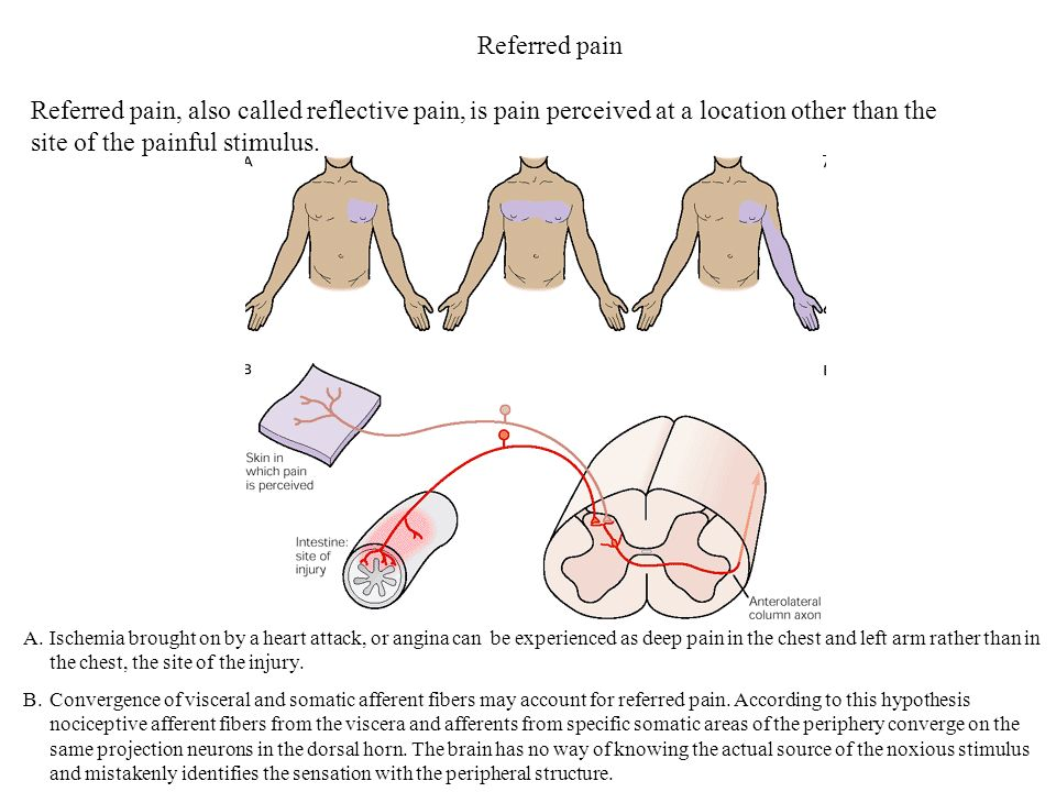 Referred pain Referred pain, also called reflective pain, is pain perceived at a location other than the site of the painful stimulus.