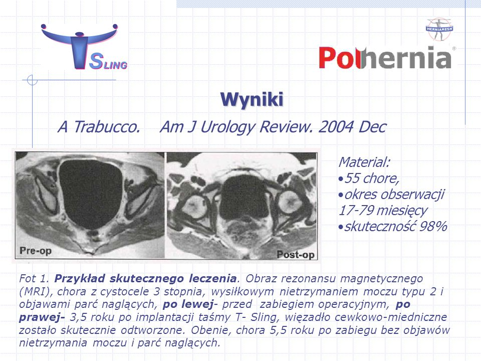 Wyniki A Trabucco. Am J Urology Review. 2004 Dec Material: 55 chore,