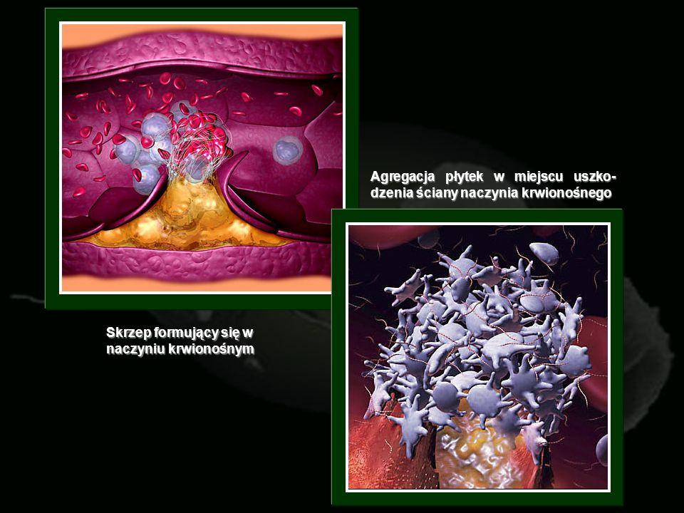 Agregacja płytek w miejscu uszko- dzenia ściany naczynia krwionośnego