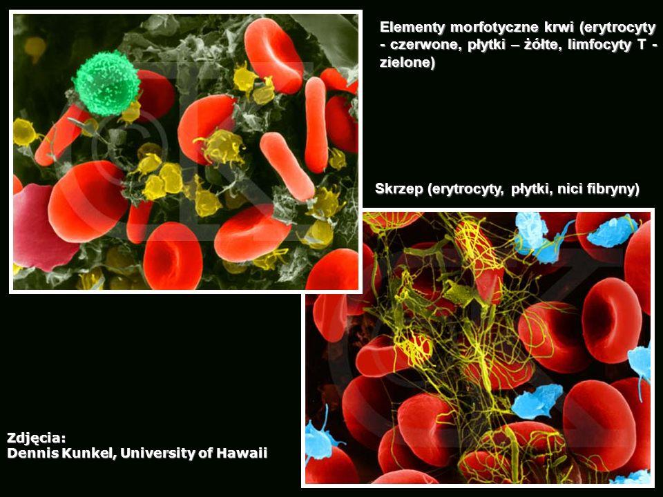 Skrzep (erytrocyty, płytki, nici fibryny)