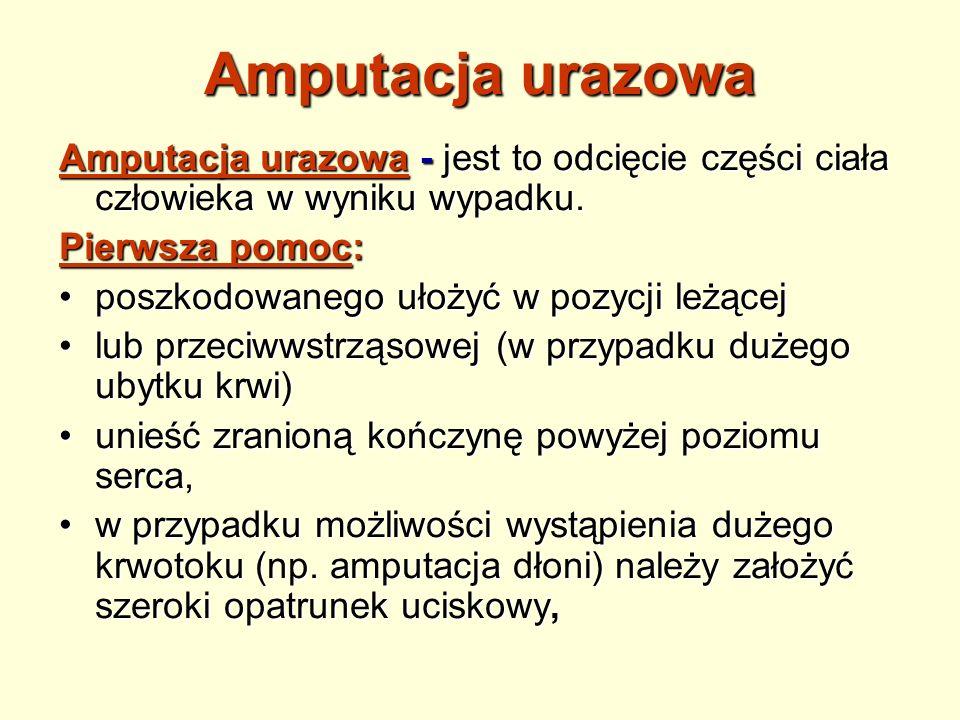 Amputacja urazowa Amputacja urazowa - jest to odcięcie części ciała człowieka w wyniku wypadku. Pierwsza pomoc: