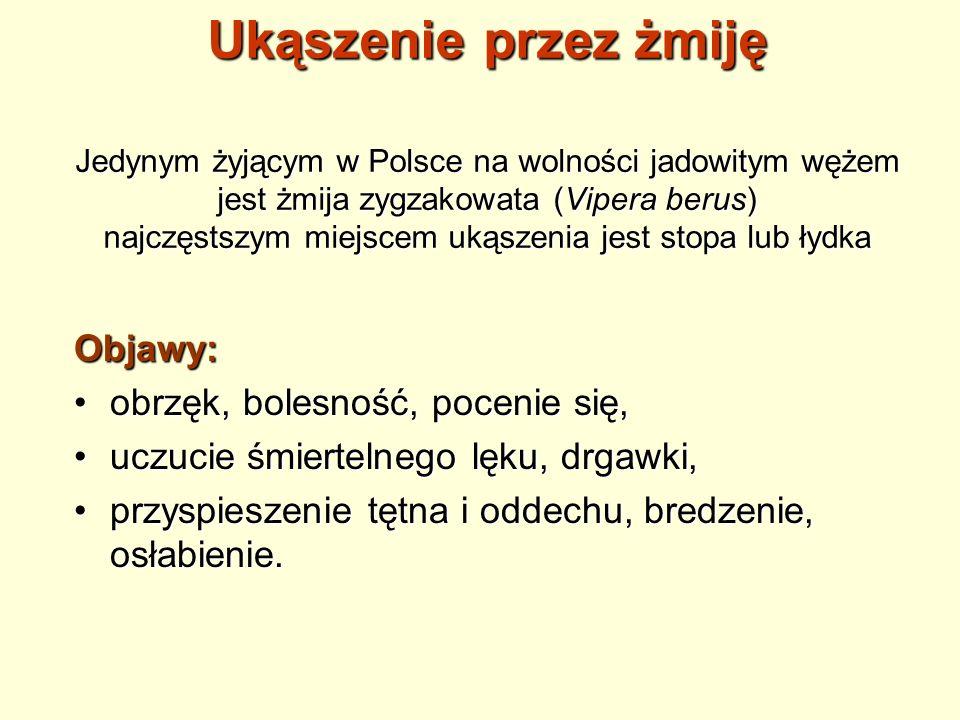 Ukąszenie przez żmiję Jedynym żyjącym w Polsce na wolności jadowitym wężem jest żmija zygzakowata (Vipera berus) najczęstszym miejscem ukąszenia jest stopa lub łydka