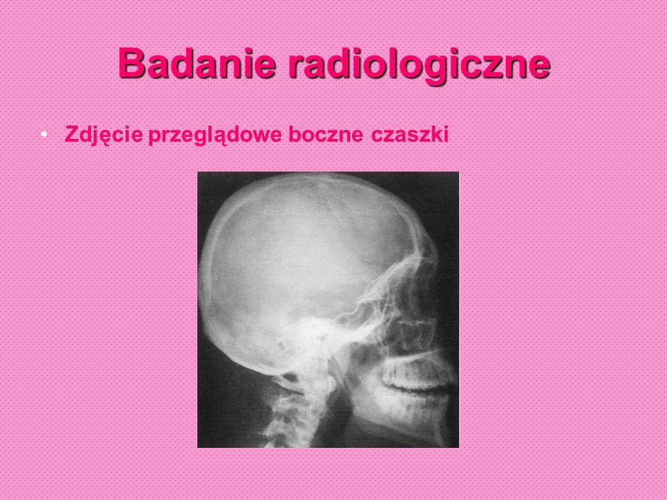 Badanie radiologiczne