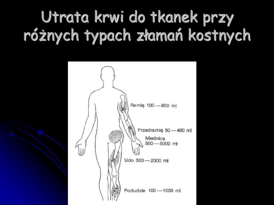 Utrata krwi do tkanek przy różnych typach złamań kostnych