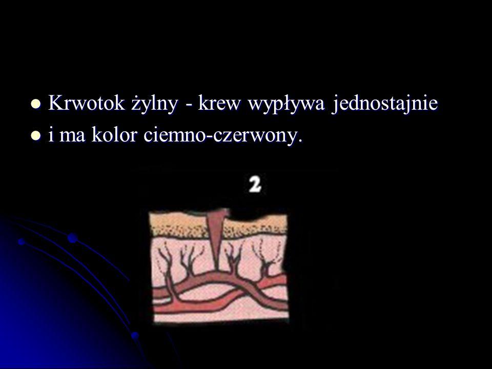 Krwotok żylny - krew wypływa jednostajnie