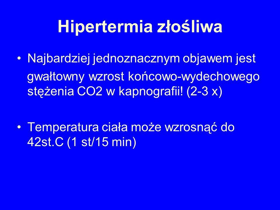 Hipertermia złośliwa Najbardziej jednoznacznym objawem jest