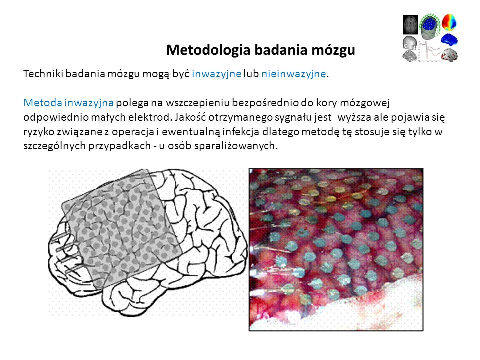 Metodologia badania mózgu