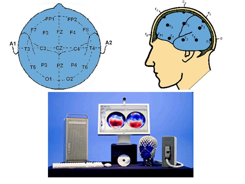 W elektroencefalografii używane są odprowadzenia jednobiegunowe (rejestracja zmian napięcia pomiędzy elektrodą aktywna a elektrodą odniesienia np.: elektrody uszne, elektroda podbródkowa, elektroda nad 7 kręgiem szyjnym oraz tzw.