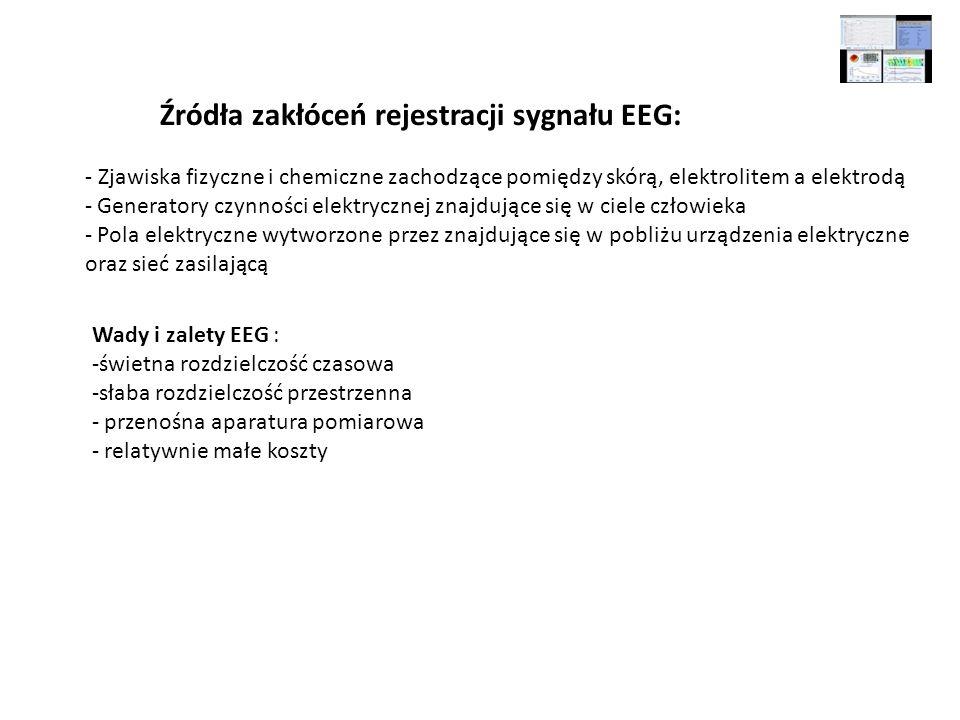 Źródła zakłóceń rejestracji sygnału EEG: