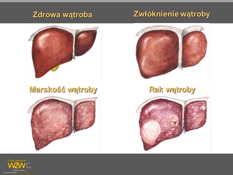 Zdrowa wątroba Zwłóknienie wątroby Marskość wątroby Rak wątroby