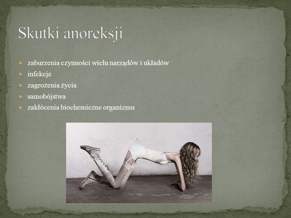 Skutki anoreksji zaburzenia czynności wielu narządów i układów