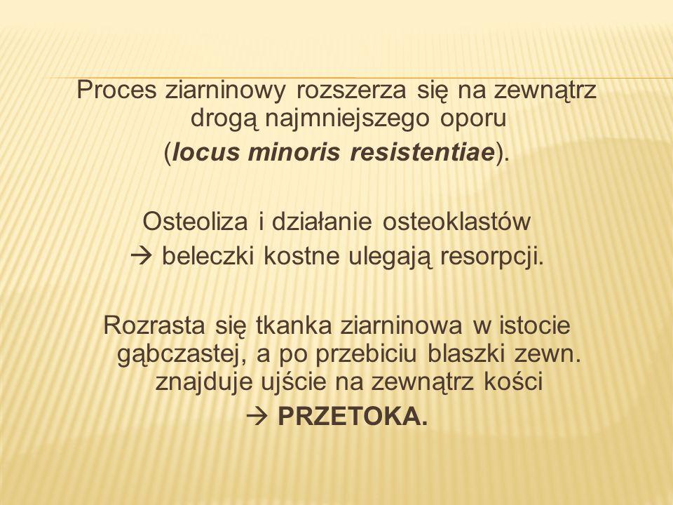 Proces ziarninowy rozszerza się na zewnątrz drogą najmniejszego oporu (locus minoris resistentiae).