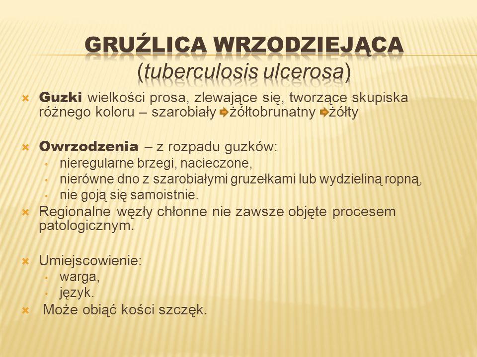 Gruźlica wrzodziejąca (tuberculosis ulcerosa)