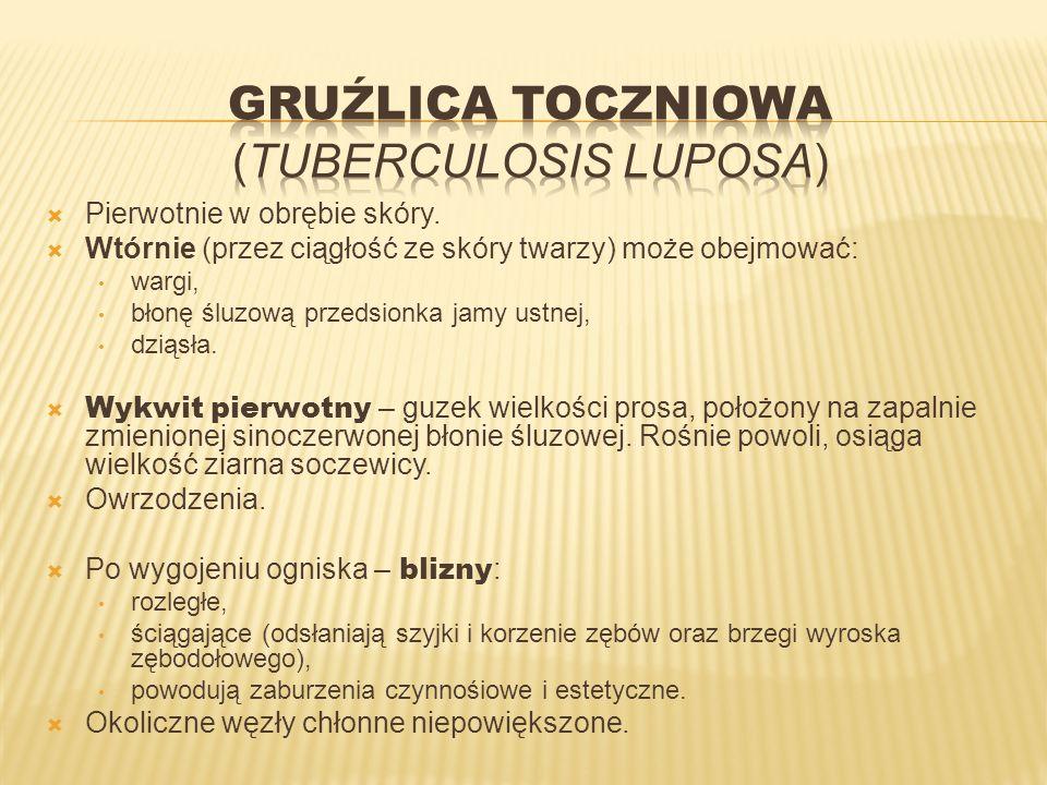 Gruźlica toczniowa (tuberculosis luposa)