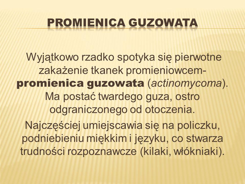 Promienica guzowata