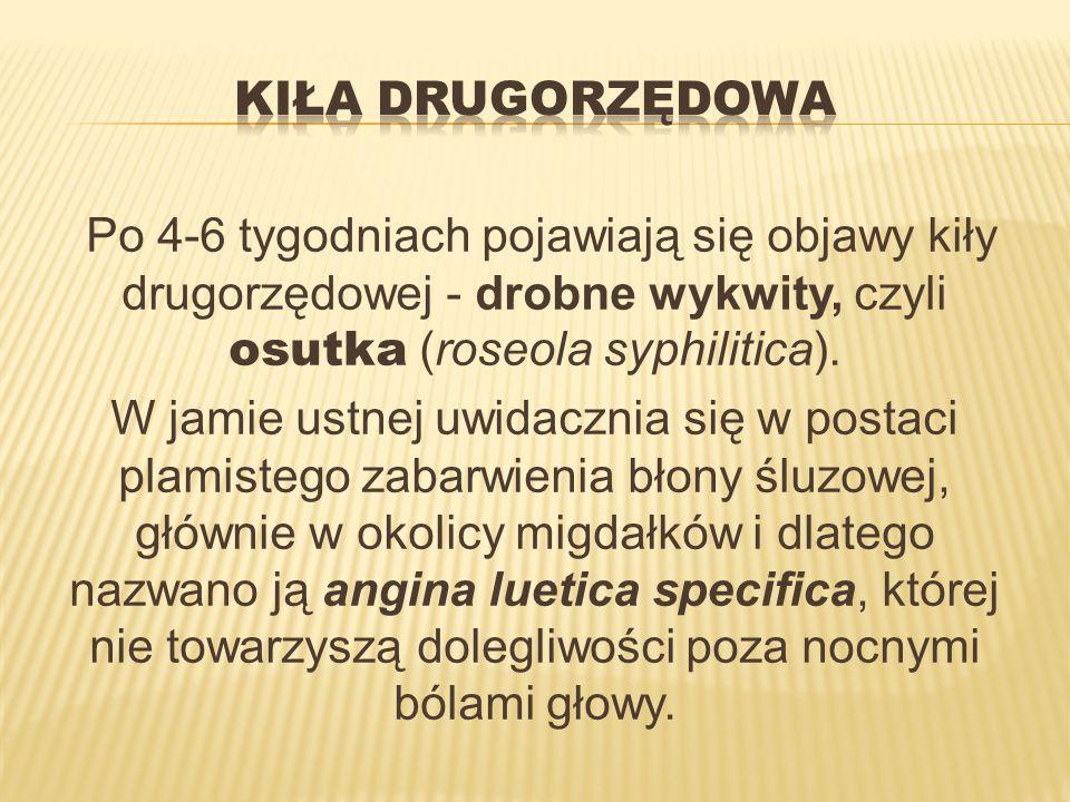 Kiła drugorzędowaPo 4-6 tygodniach pojawiają się objawy kiły drugorzędowej - drobne wykwity, czyli osutka (roseola syphilitica).
