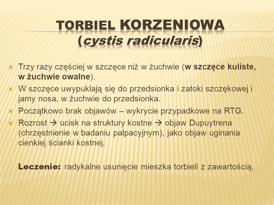 Torbiel korzeniowa (cystis radicularis)