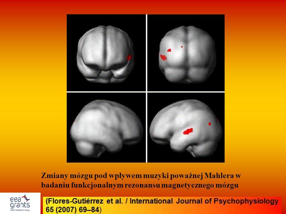 Zmiany mózgu pod wpływem muzyki poważnej Mahlera w badaniu funkcjonalnym rezonansu magnetycznego mózgu
