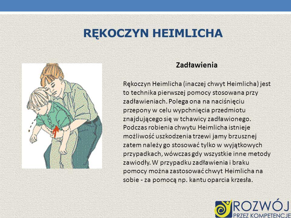 Rękoczyn heimlicha Zadławienia