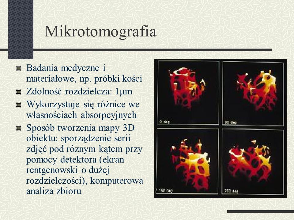 Mikrotomografia Badania medyczne i materiałowe, np. próbki kości