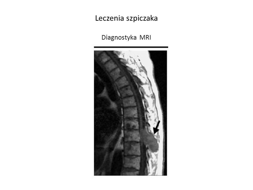 Leczenia szpiczaka Diagnostyka MRI