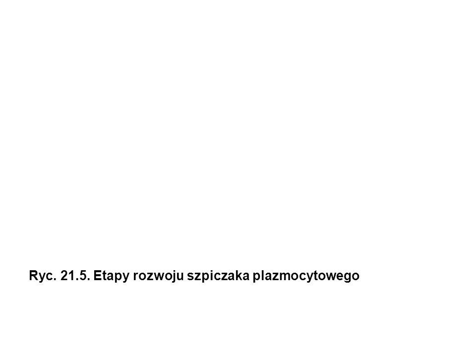 Ryc. 21.5. Etapy rozwoju szpiczaka plazmocytowego