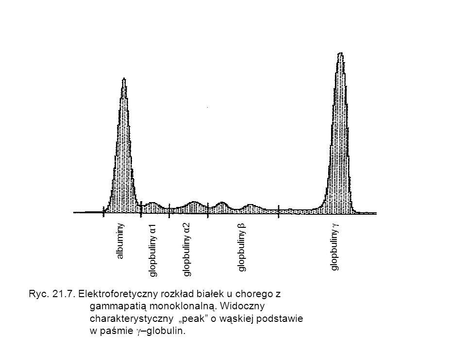Ryc. 21.7. Elektroforetyczny rozkład białek u chorego z
