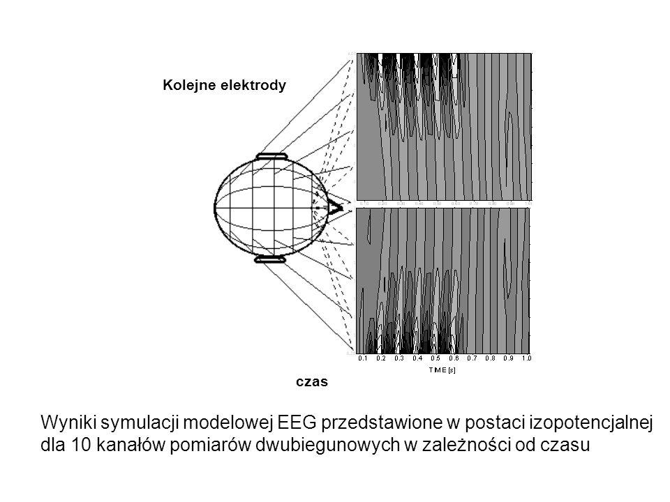 Wyniki symulacji modelowej EEG przedstawione w postaci izopotencjalnej