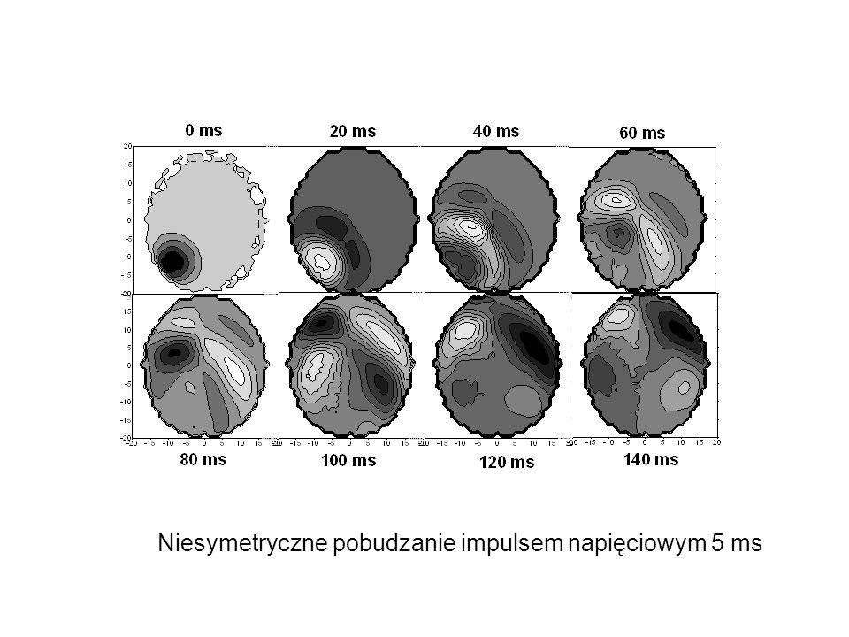 Niesymetryczne pobudzanie impulsem napięciowym 5 ms